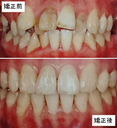 歯の矯正の前後