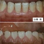 歯周病の治療「歯周外科治療」|歯茎の状態を劇的に改善