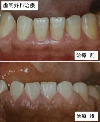 歯周外科治療前・後