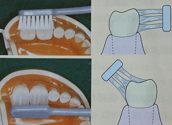 中高年以降、歯周病になったことのある人はスクラッビング法がおすすめ