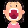 いつの間にかできている歯石、原因と予防方法を解説します