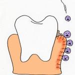 歯肉炎について知って、予防をしましょう