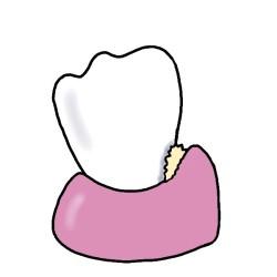 歯石を放置