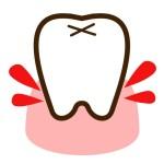 歯肉炎になると、どうして歯茎から出血するの?