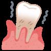 歯周病で歯が抜けたらインプラントができない!?