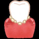 歯石が肺炎を起こすことも?歯石を放置したらいけない理由