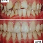「大人になってからの歯の矯正」について詳しく解説します