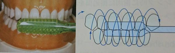 虫歯になりやすい人はフォーンズ法というやり方がオススメ