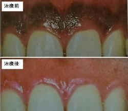 真っ黒な歯ぐきが健康的なピンクの歯茎に改善した症例
