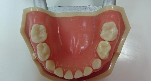 生えたての大人の歯には深い溝がたくさんある