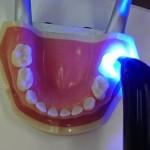歯の「シーラント」とは|歯の溝を埋めて虫歯予防