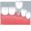インプラント治療をした後の正しい歯の磨き方