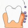 歯肉炎の主な症状としては、5つあります