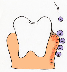 子供の歯肉炎