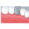 """歯の""""かぶせもの""""には、「保険がきく」ものと、「きかない」ものがあります"""