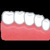 銀歯を白い歯に変える治療方法